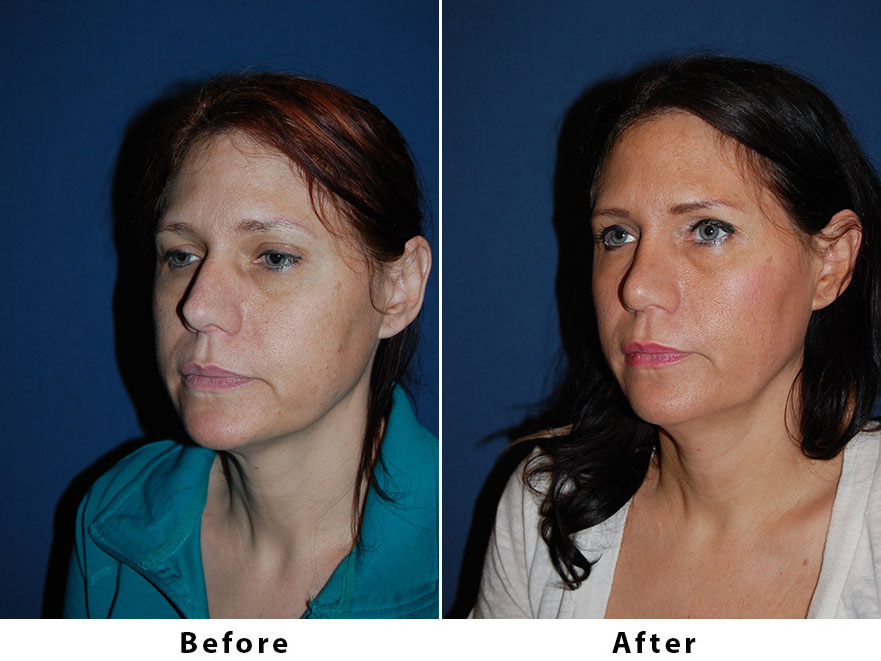 Patient 6186: 44 year old female - Rhinoplasty Procedures