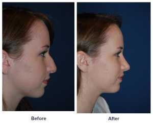 Before and after teen rhinoplasty photos