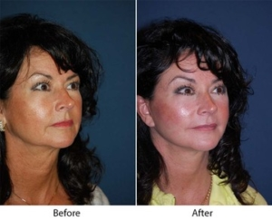 Best Charlotte NC facial plastic surgeon
