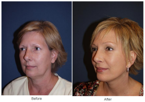 Brow Lift - Dr. Freeman Makeover to a patient