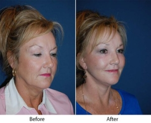 Brow lift in Charlotte NC