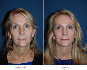 Dr. Sean Freeman- Charlotte's best facial plastic surgeon