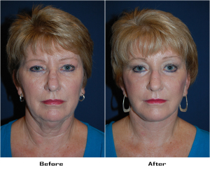 Deep Plane Facelift or Facial Plastic Surgery in Charlotte, NC