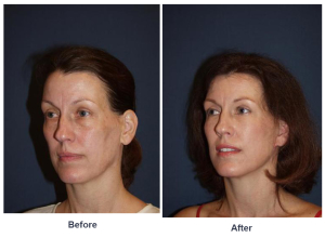 Eye lift in Charlotte, NC