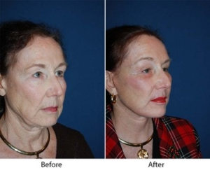 Eye lift surgery in Charlotte, NC