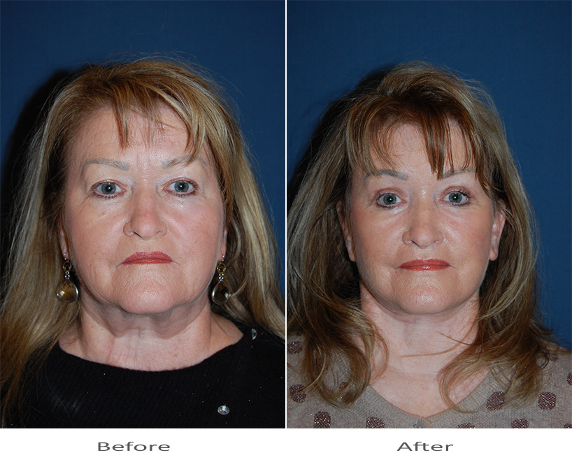 Face Lift and Botox