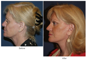 Facelift or Botox in Charlotte, NC