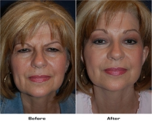 Facelifts in Charlotte
