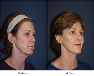 Facelift in Charlotte NC