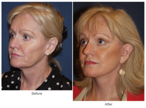 Facelift or Facial plastic surgery in Charlotte, NC