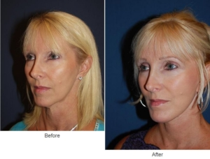Face lift or Facial plastic surgery - Charlotte, NC