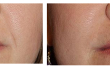 Dr. Freemans before/ after photos of Injectable fillers