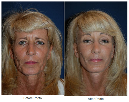 Laser resurfacing and Botox in Charlotte NC