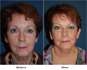 Lateral Brow Lift in Charlotte, NC
