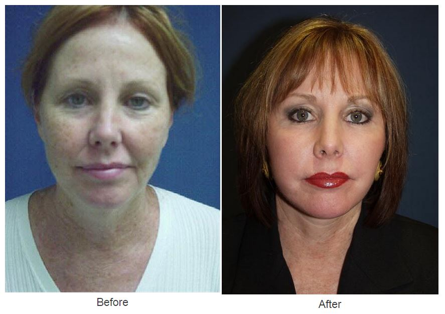 Lip Augmentation - Charlotte, NC