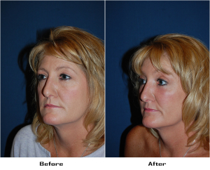 Lower Lid Blepharoplasty With SOOF or Soof lift blepharoplasty in Charlotte, NC