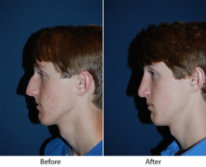 Nose job surgeons in Charlotte NC