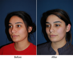 Revision rhinoplasty in Charlotte NC