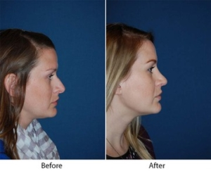 Nose job in Charlotte NC