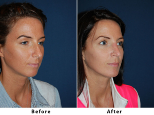 Top rhinoplasty in Charlotte, NC