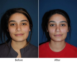 Top Rhinoplasty in Charlotte NC