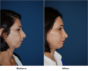 Rhinoplasty or nose job in Charlotte, NC