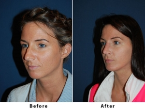 Rhinoplasty recovery in Charlotte NC