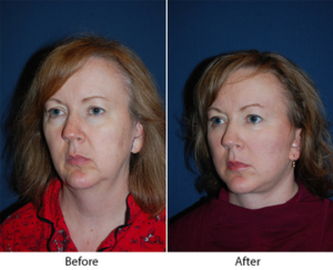 Top SOOF lift blepharoplasty in Charlotte, NC