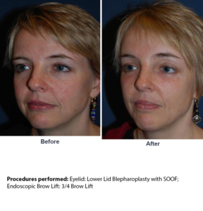 SOOF lift blepharoplasty in Charlotte NC
