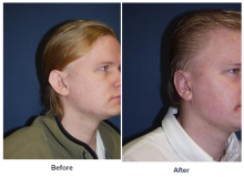 Ear Surgery - Otoplasty- Before and After photos
