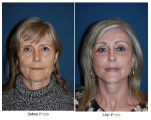 eyelid surgery by Dr. Sean Freeman, Charlotte NC