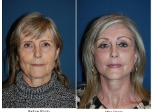 Dr. Freeman's Laser Resurfacing