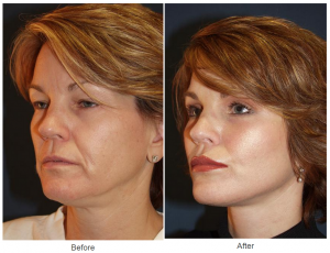Lip Enhancement - Dr. Freeman
