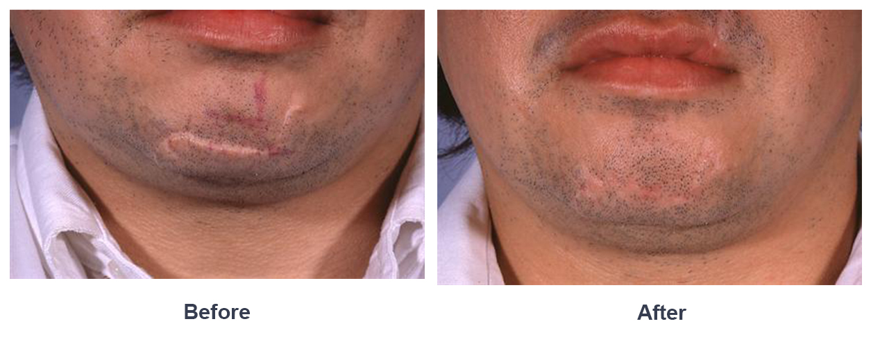 Scar revision by charlotte facial plastic surgeon dr freeman scar revision sciox Choice Image