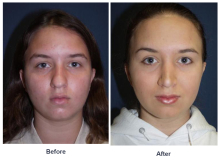 Dr. Freeman's Revision Rhinoplasty's