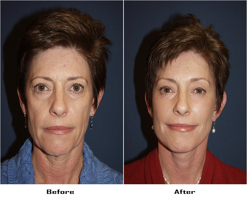 Patient 3069 Before And After