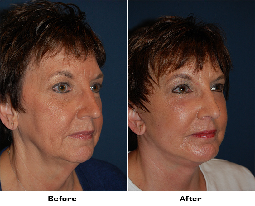 Patient 3785 Before And After