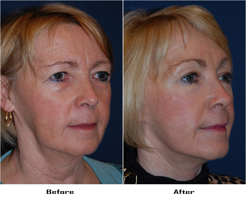 Patient 3817 Before And After