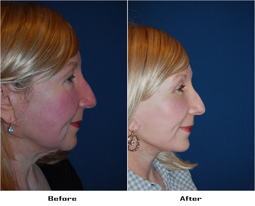 Patient 4053 Before And After