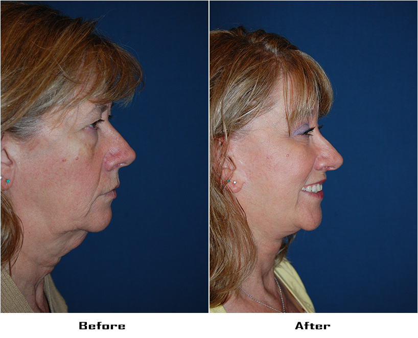 Patient 4668 Before And After