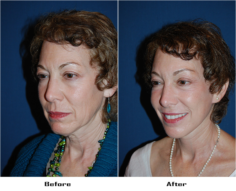 Patient 4896 Before And After