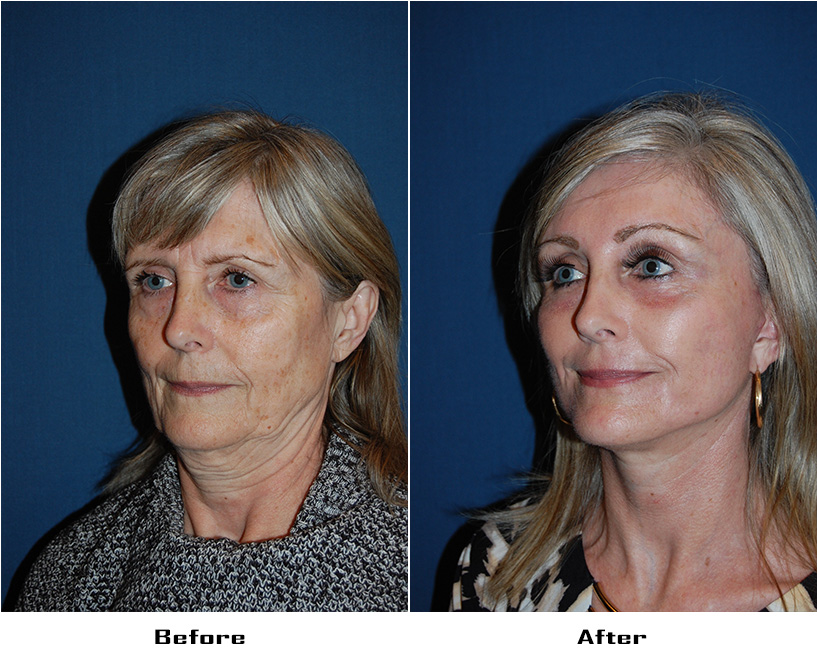 Patient 4978 Before And After
