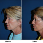 Patient 5039 Before And After