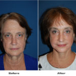 Patient 5164 Before And After