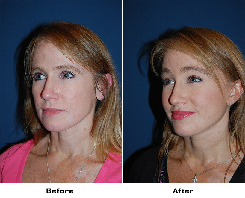 Patient 5394 Before And After