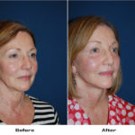 Patient 5541 Before And After