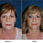 Patient 5548 Before And After