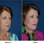 Patient 5564 Before And After