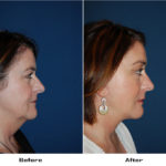 Patient 5582 Before And After