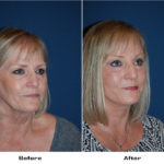 Patient 5655 Before And After